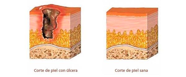 La cutis problemática las cicatrices antes y después